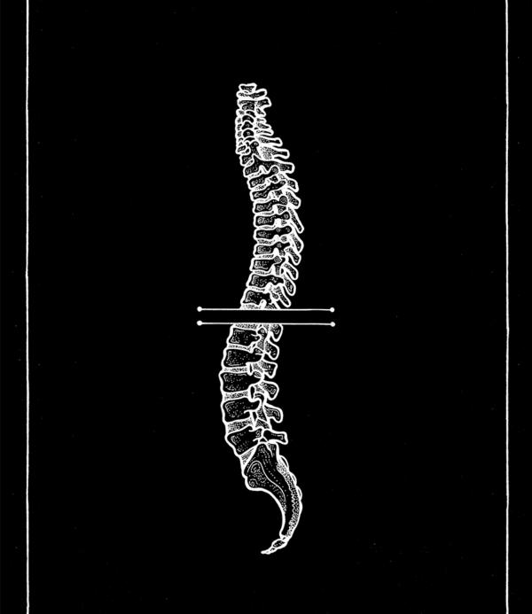 Anatomic Spine - Rune Carls